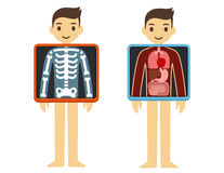 X-ray. Two illustrations of cute cartoon adult man with x-ray screen showing his internal organs and skeleton. Element of health infographics royalty free illustration