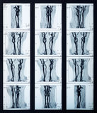 X-ray veins collection Royalty Free Stock Photos