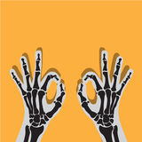X-ray view of hand on yellow. X-ray view of  hand , finger broken Stock Photo