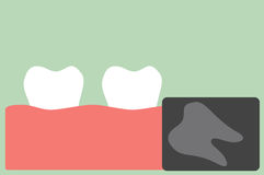X-ray wisdom tooth Royalty Free Stock Photography