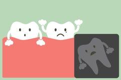 X-ray wisdom tooth Stock Image