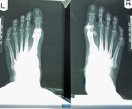 X-ray Of Woman's Foot Stock Photos