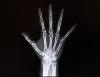 X-ray of wrist of the arms Royalty Free Stock Images
