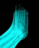 X-Ray. Xray broken foot in a cast royalty free stock image