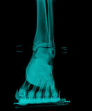 X-Ray. Xray of feet front view with plast wood splint royalty free stock photography