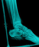 X-Ray. Xray of feet side view with plast wood splint Royalty Free Stock Photography