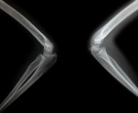 X-ray of a young mans arm Royalty Free Stock Photos