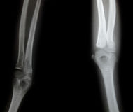 X-ray of a young mans arm Royalty Free Stock Images