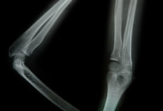 X-ray of a young people arm Stock Photography