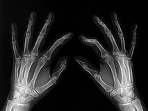 X-rayed hands royalty free stock images