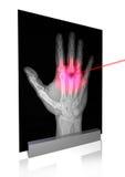 X-rays-1 Stock Photo
