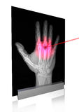 X-rays-1 Foto de archivo