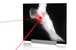 X-rays-5 Stock Photo