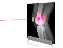 X-rays-6 Stock Photography