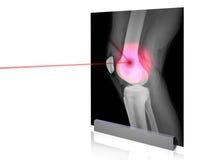 X-rays-6 Fotografía de archivo