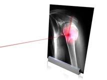 X-rays-7 Stock Image