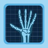 X rays design Royalty Free Stock Images