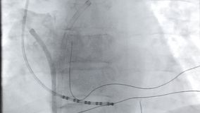 Heart x-ray video. X-rays of the heart video in the online mode during the operation stock footage