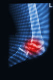 X Rays image  broken knee joint with implant Stock Photo