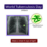 X-rays of light. Diagnosis of tuberculosis. Vector illustration on isolated background Stock Images