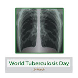 X-rays of light. Diagnosis of tuberculosis. Vector illustration on isolated background Royalty Free Stock Image