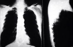 X rays smokers lungs. X rays of a cigarette smoker lungs showing cancer cells royalty free stock photo