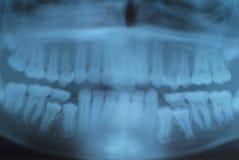 X rays of teeth Stock Photos