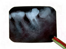 X-rays of teeth Royalty Free Stock Photography