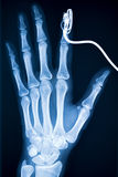 Xray_1. Hand x-ray. Medical detail of a x-ray Royalty Free Stock Image