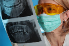 Xray. Female doctor with jaw xray (focus on xray stock photos