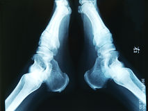 Xray. Double heel department X-ray, heel department bone place has hyperplasia disease Stock Images