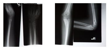 Xray Stock Photography