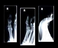 Xray/Broken big toe. Three views royalty free stock photography