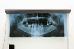 Xray captures teeth. Xray captures the jaw and teeth Royalty Free Stock Photography
