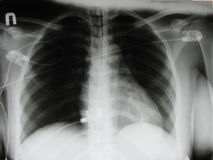 An xray of a chest Stock Photography