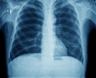 Xray chest stock photography