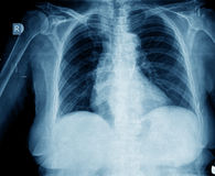 Xray chest Stock Photo