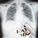 Xray chest and medicine Royalty Free Stock Images