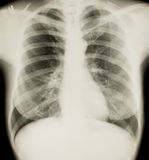 Xray of chest, normal royalty free stock photos