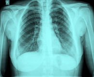 Xray chest royalty free stock photo