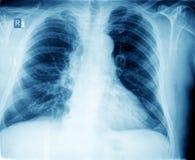 Xray chest Stock Image