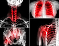 Xray. Collection multiple part of human , painful stock images