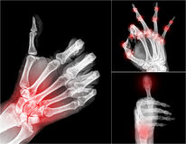 Xray. Collection X-ray symbol hands , painful stock images