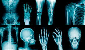 Xray collection royalty free stock image