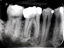 Xray dental film amalgam filling royalty free stock photos