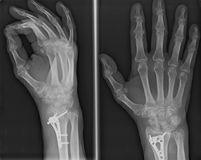 Xray of epiphysial radial fracture reduced with permanent synthetic means. Xray imaging of epiphysial radial fracture of wrist reduced with permanent synthetic Royalty Free Stock Photos