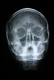 Xray/Face Front. View Royalty Free Stock Photos