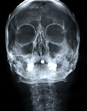 Xray/Face front Stock Photo