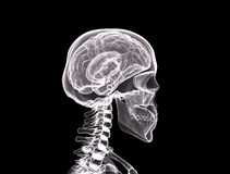 Xray/Face side view. Of the human brain Stock Photo