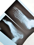 Xray Foot Stock Image